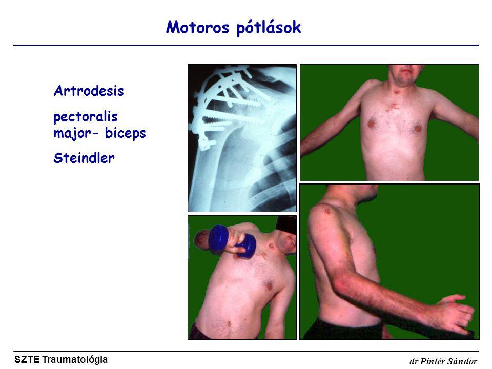 Motoros pótlások SZTE Traumatológia dr Pintér Sándor Artrodesis pectoralis major- biceps Steindler