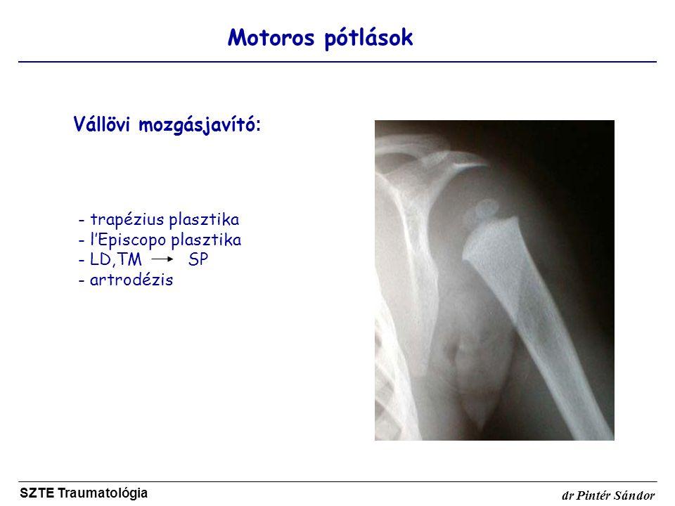 Motoros pótlások SZTE Traumatológia dr Pintér Sándor Vállövi mozgásjavító : - trapézius plasztika - l'Episcopo plasztika - LD,TM SP - artrodézis