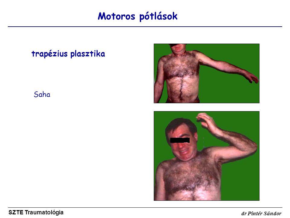 Motoros pótlások SZTE Traumatológia dr Pintér Sándor trapézius plasztika Saha