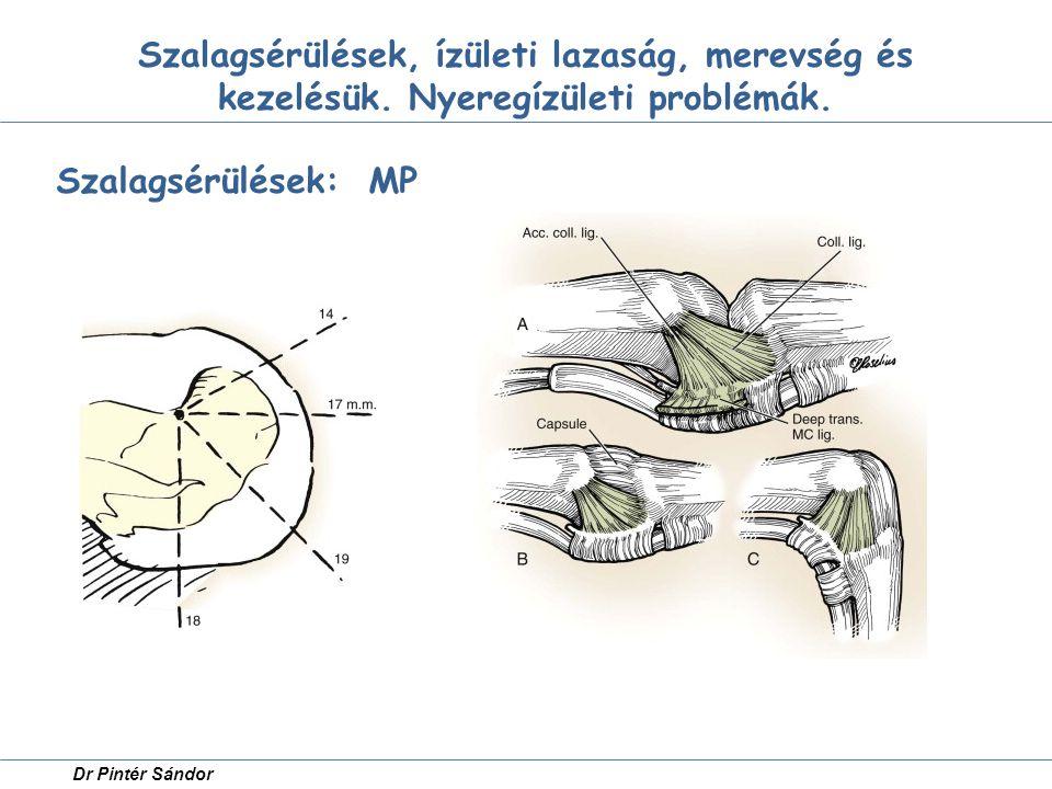 Szalagsérülések, ízületi lazaság, merevség és kezelésük. Nyeregízületi problémák. Szalagsérülések: MP Dr Pintér Sándor