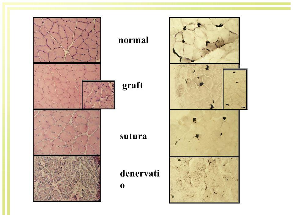 normal graft sutura denervati o