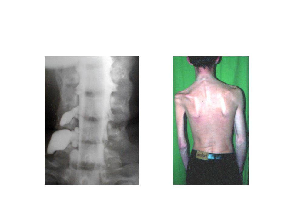 A plexus brachialis sérülések sebészi kezelésével szerzett tapasztalataink SZTE Traumatológia dr Pintér Sándor fMRI vizsgálat Perifériásan kialakult domináns kéz és a beszédközpont elhelyezkedése között szoros összefüggés van
