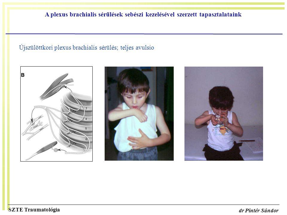 A plexus brachialis sérülések sebészi kezelésével szerzett tapasztalataink SZTE Traumatológia dr Pintér Sándor Újszülöttkori plexus brachialis sérülés