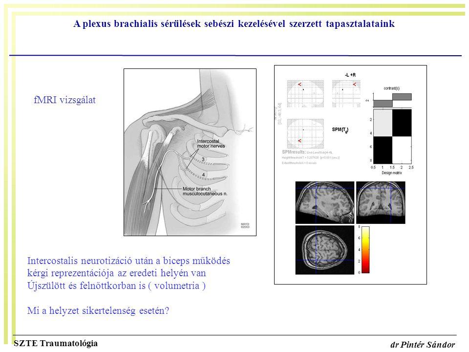 A plexus brachialis sérülések sebészi kezelésével szerzett tapasztalataink SZTE Traumatológia dr Pintér Sándor Intercostalis neurotizáció után a bicep