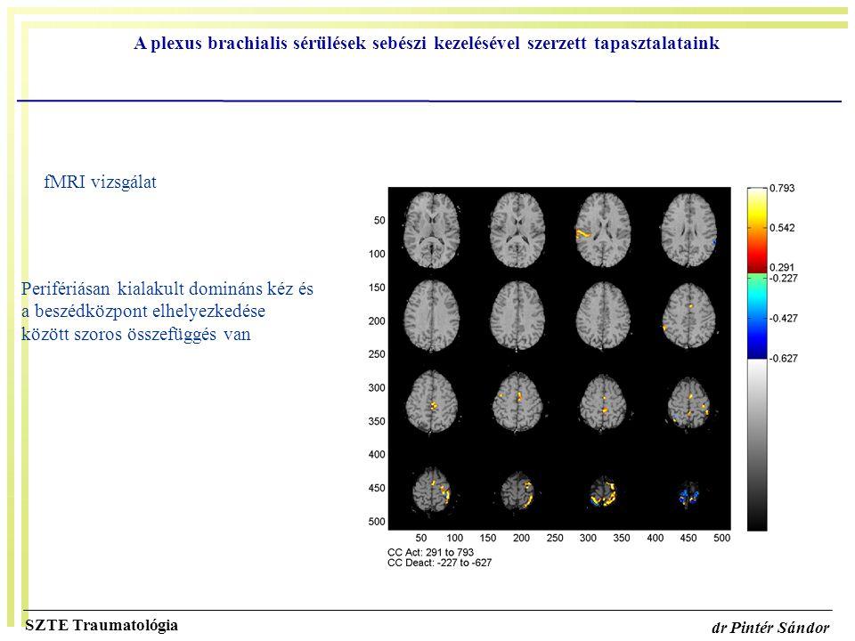 A plexus brachialis sérülések sebészi kezelésével szerzett tapasztalataink SZTE Traumatológia dr Pintér Sándor fMRI vizsgálat Perifériásan kialakult d