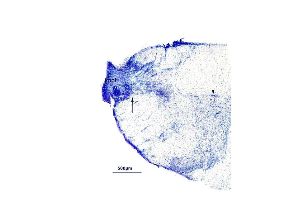 Riluzole (Rilutek) neuroprotectív hatásai: Na + csatorna blokkoló Ca ++ csatorna blokkoló presynaptikus glutamat felvétel gátlása