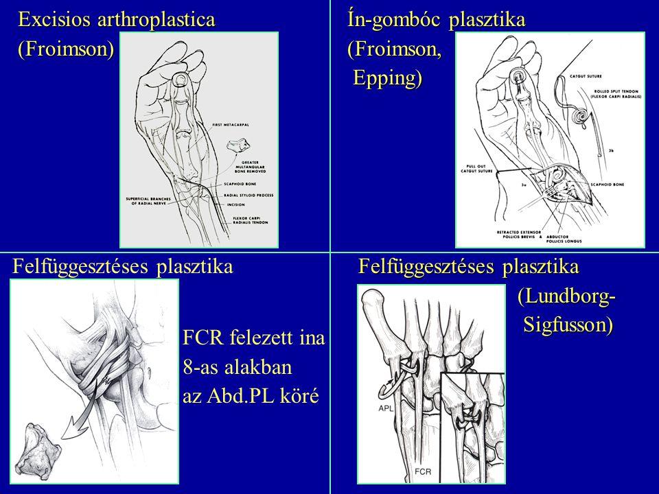Excisios arthroplastica (Froimson) Ín-gombóc plasztika (Froimson, Epping) Epping) Felfüggesztéses plasztika (Lundborg- (Lundborg- Sigfusson) Sigfusson
