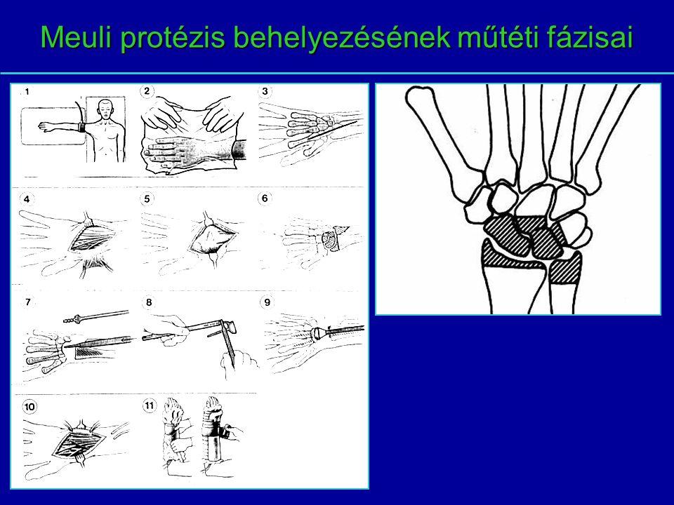 Meuli protézis behelyezésének műtéti fázisai