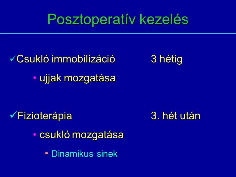 Posztoperatív kezelés Csukló immobilizáció3 hétig Csukló immobilizáció3 hétig ujjak mozgatása ujjak mozgatása Fizioterápia3. hét után Fizioterápia3. h