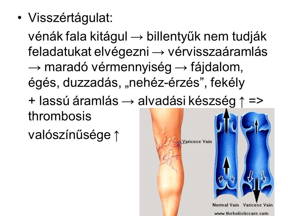 Visszértágulat: vénák fala kitágul → billentyűk nem tudják feladatukat elvégezni → vérvisszaáramlás → maradó vérmennyiség → fájdalom, égés, duzzadás,