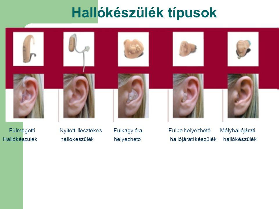 Hallókészülék típusok Fülmögötti Nyitott illesztékes Fülkagylóra Fülbe helyezhető Mélyhallójárati Hallókészülék hallókészülék helyezhető hallójárati k