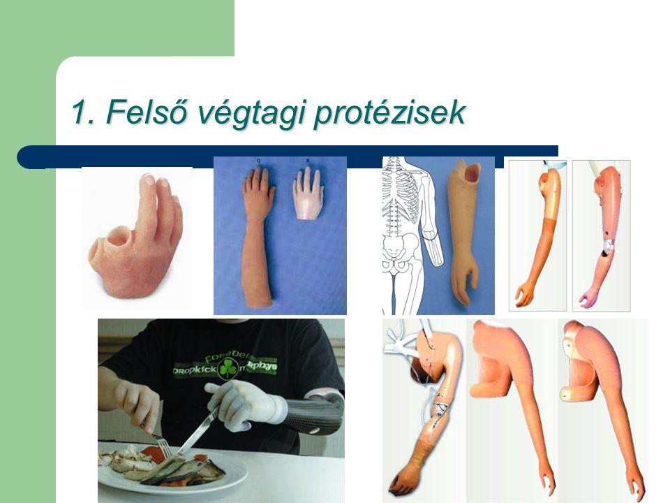 1. Felső végtagi protézisek