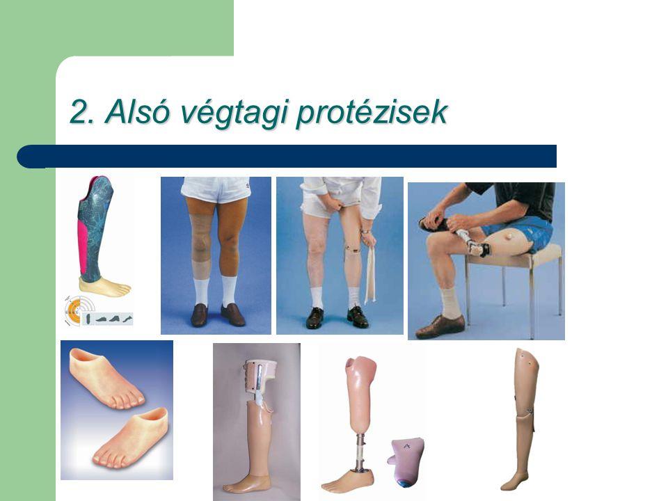 2. Alsó végtagi protézisek
