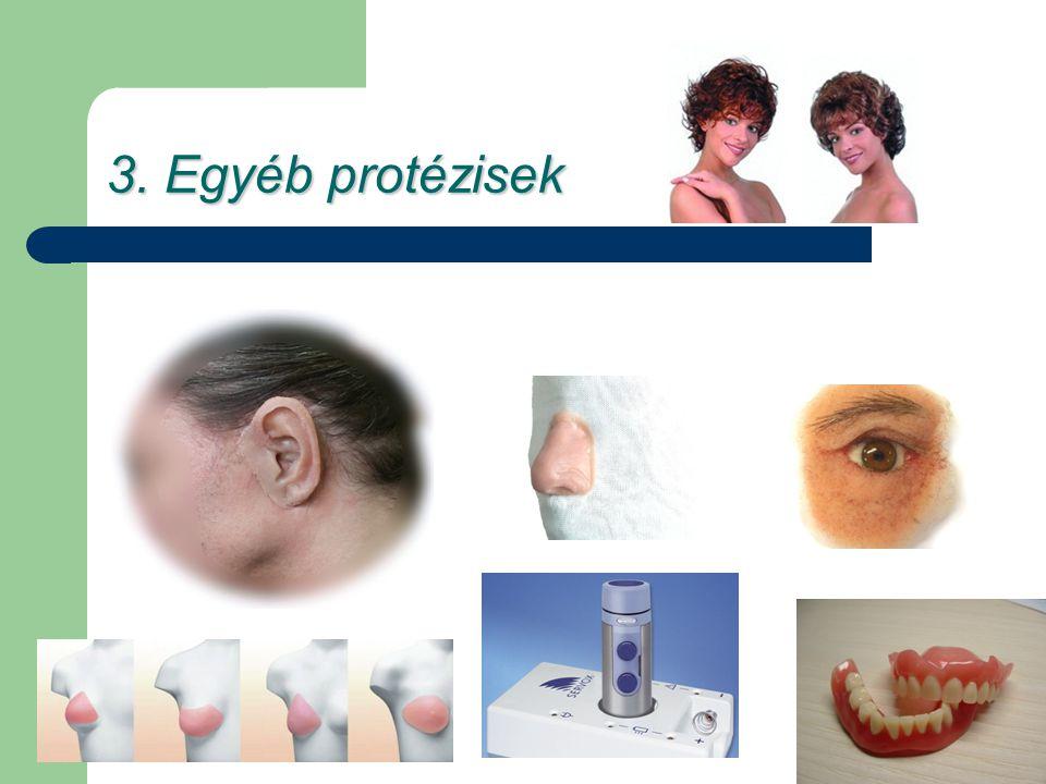 3. Egyéb protézisek