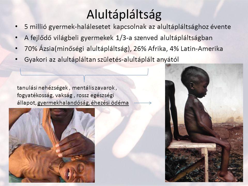 Alultápláltság 5 millió gyermek-halálesetet kapcsolnak az alultápláltsághoz évente A fejlődő világbeli gyermekek 1/3-a szenved alultápláltságban 70% Á