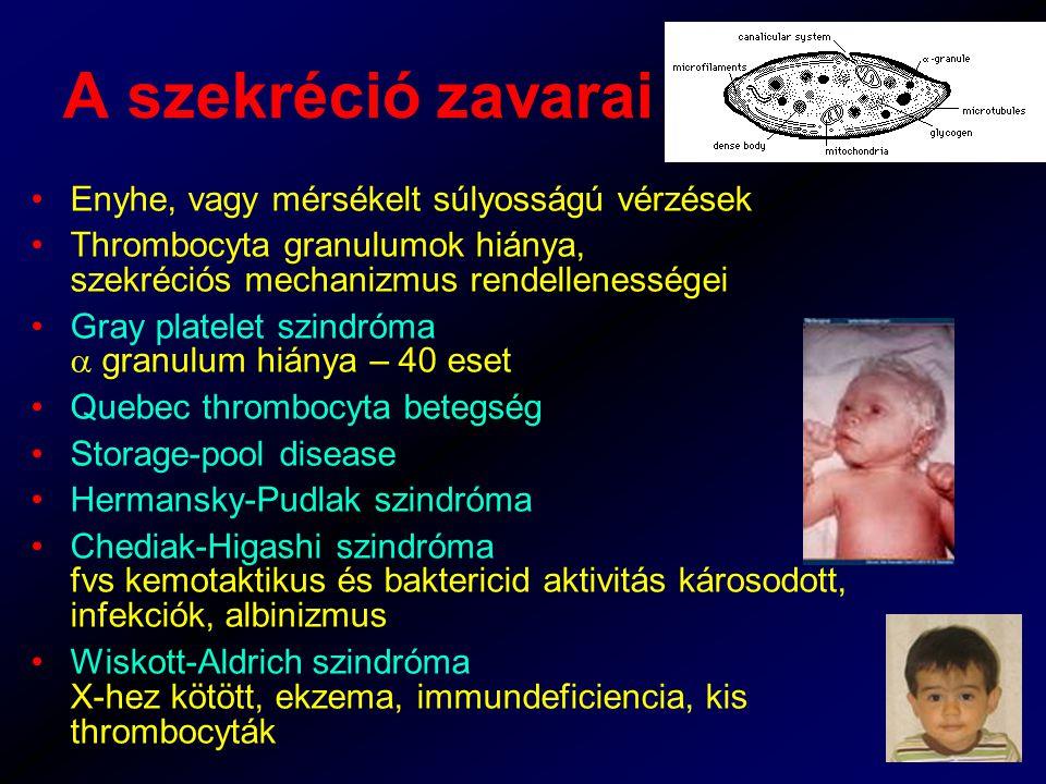 A szekréció zavarai Enyhe, vagy mérsékelt súlyosságú vérzések Thrombocyta granulumok hiánya, szekréciós mechanizmus rendellenességei Gray platelet szindróma  granulum hiánya – 40 eset Quebec thrombocyta betegség Storage-pool disease Hermansky-Pudlak szindróma Chediak-Higashi szindróma fvs kemotaktikus és baktericid aktivitás károsodott, infekciók, albinizmus Wiskott-Aldrich szindróma X-hez kötött, ekzema, immundeficiencia, kis thrombocyták