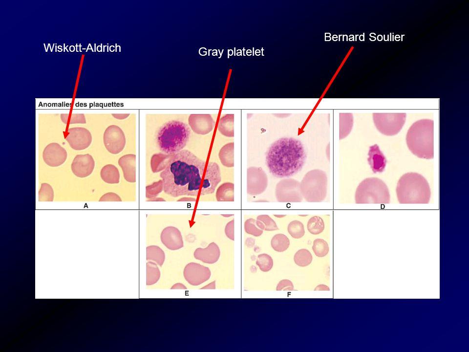 Bernard Soulier Wiskott-Aldrich Gray platelet