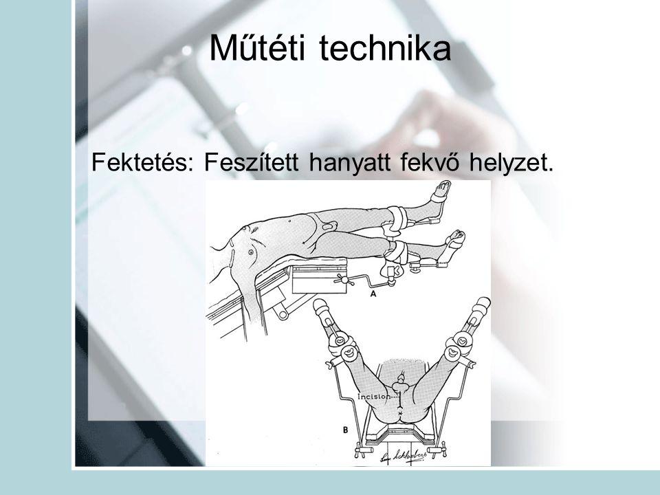 Műtéti technika Fektetés: Feszített hanyatt fekvő helyzet.