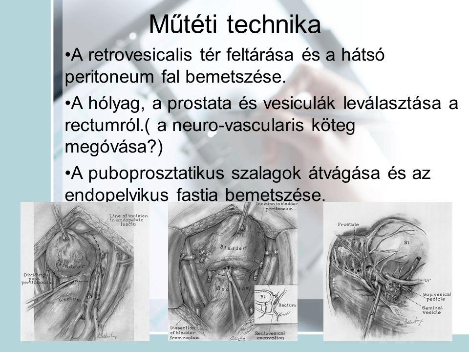 Műtéti technika A retrovesicalis tér feltárása és a hátsó peritoneum fal bemetszése. A hólyag, a prostata és vesiculák leválasztása a rectumról.( a ne