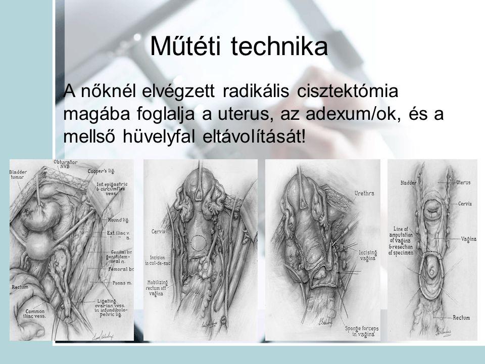 Műtéti technika A nőknél elvégzett radikális cisztektómia magába foglalja a uterus, az adexum/ok, és a mellső hüvelyfal eltávolítását!
