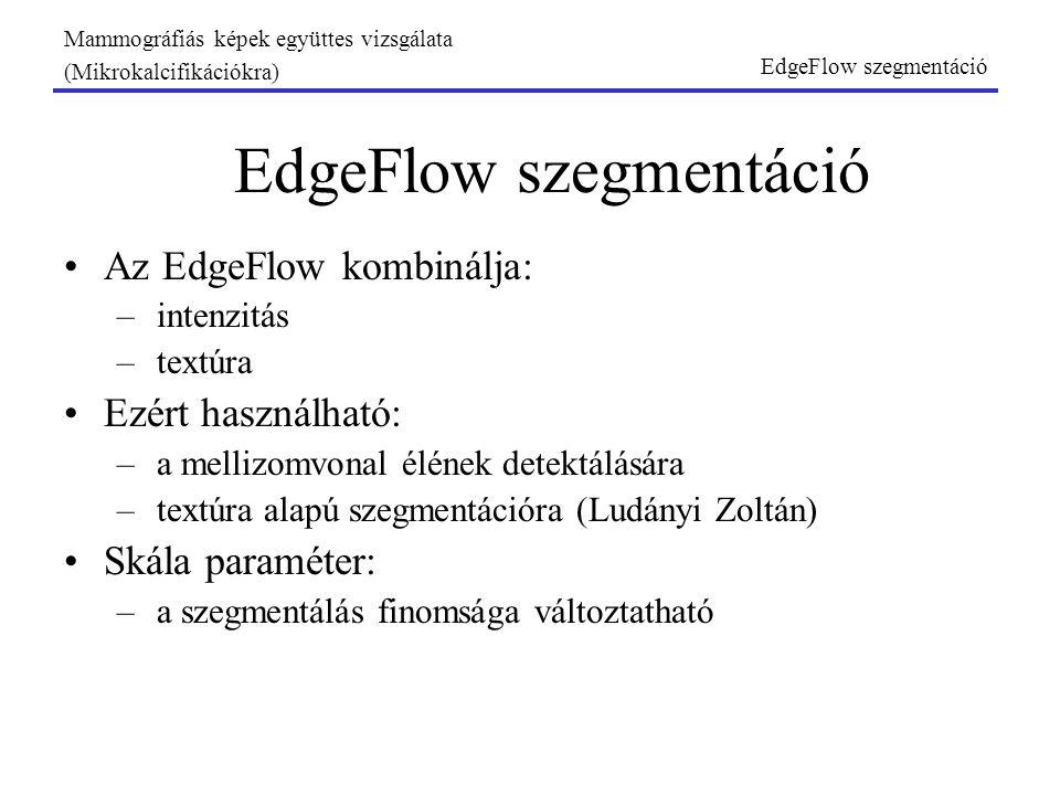 Mammográfiás képek együttes vizsgálata (Mikrokalcifikációkra) EdgeFlow szegmentáció Az EdgeFlow kombinálja: –intenzitás –textúra Ezért használható: –a