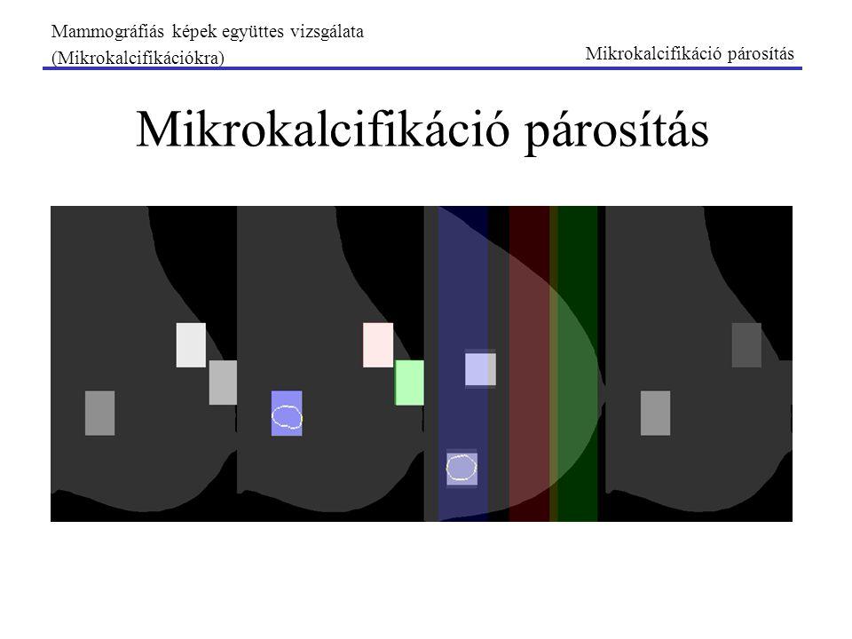 Mikrokalcifikáció párosítás Mammográfiás képek együttes vizsgálata (Mikrokalcifikációkra) Mikrokalcifikáció párosítás