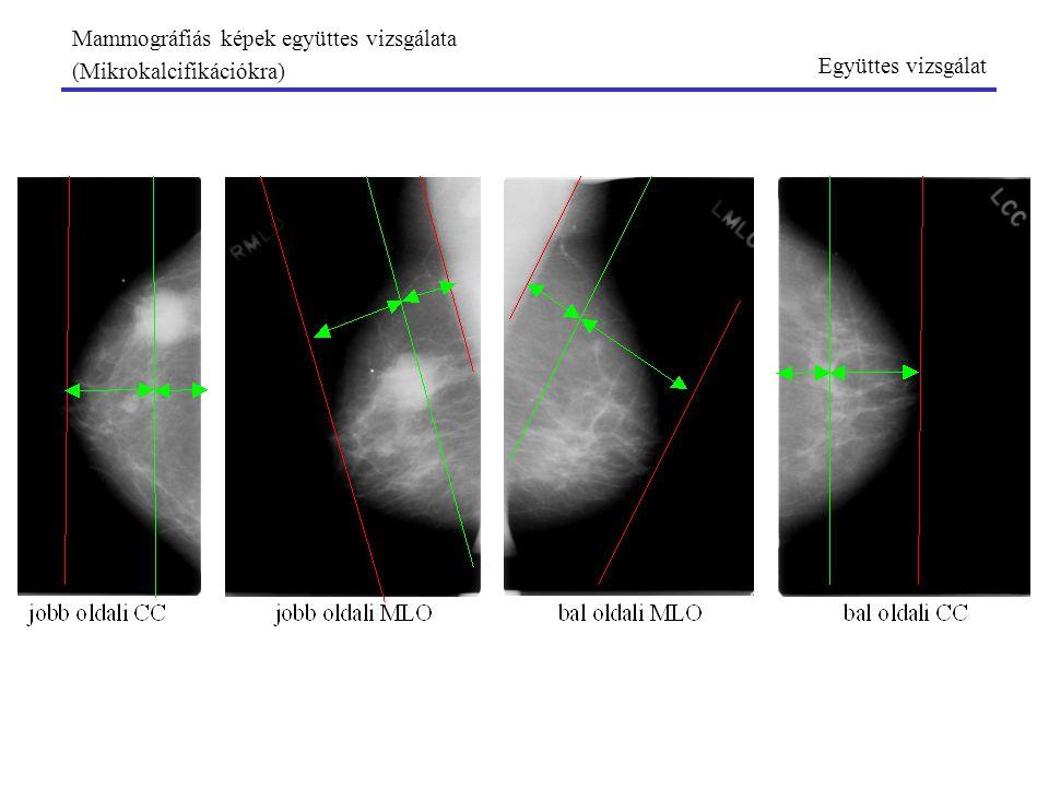 Mammográfiás képek együttes vizsgálata (Mikrokalcifikációkra) Együttes vizsgálat