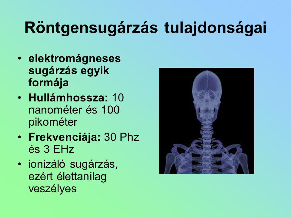 Röntgensugárzás tulajdonságai elektromágneses sugárzás egyik formája Hullámhossza: 10 nanométer és 100 pikométer Frekvenciája: 30 Phz és 3 EHz ionizál