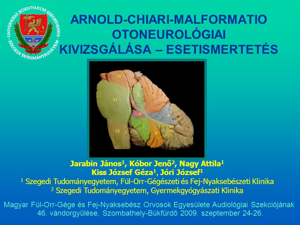 """Az Arnold-Chiari malformatiók súlyossági fokai 1883- Cleland 1890's- Chiari 1907- """"Arnold-Chiari malformation (Schwalbe és Gredig) Chiari-malformatiók besorolása I.TípusA cerebellaris tonsillák caudalis elmozdulása a foramen magnum szintje alá."""