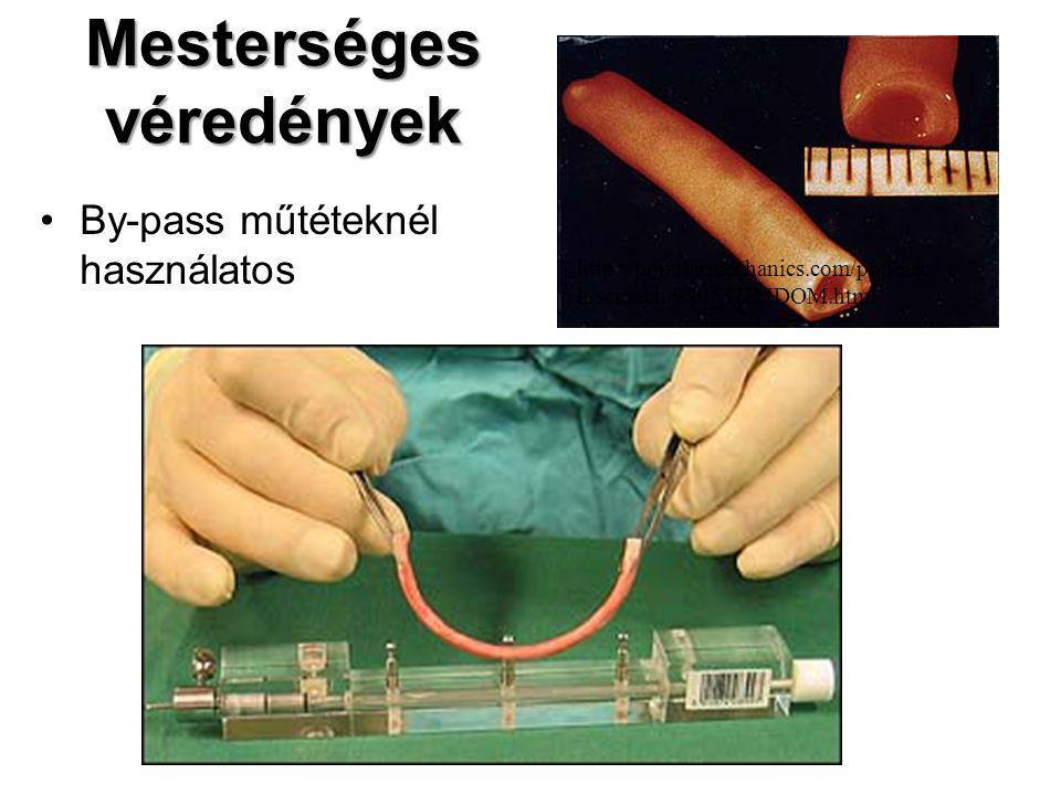 Mesterséges véredények By-pass műtéteknél használatos http://popularmechanics.com/popmec h/sci/tech/9805TUMDOM.html