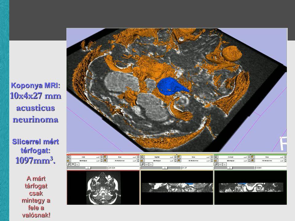 Koponya MRI: 10x4x27 mm acusticus neurinoma Slicerrel mért térfogat: 1097mm 3. A márt tárfogat csak mintegy a fele a valósnak!