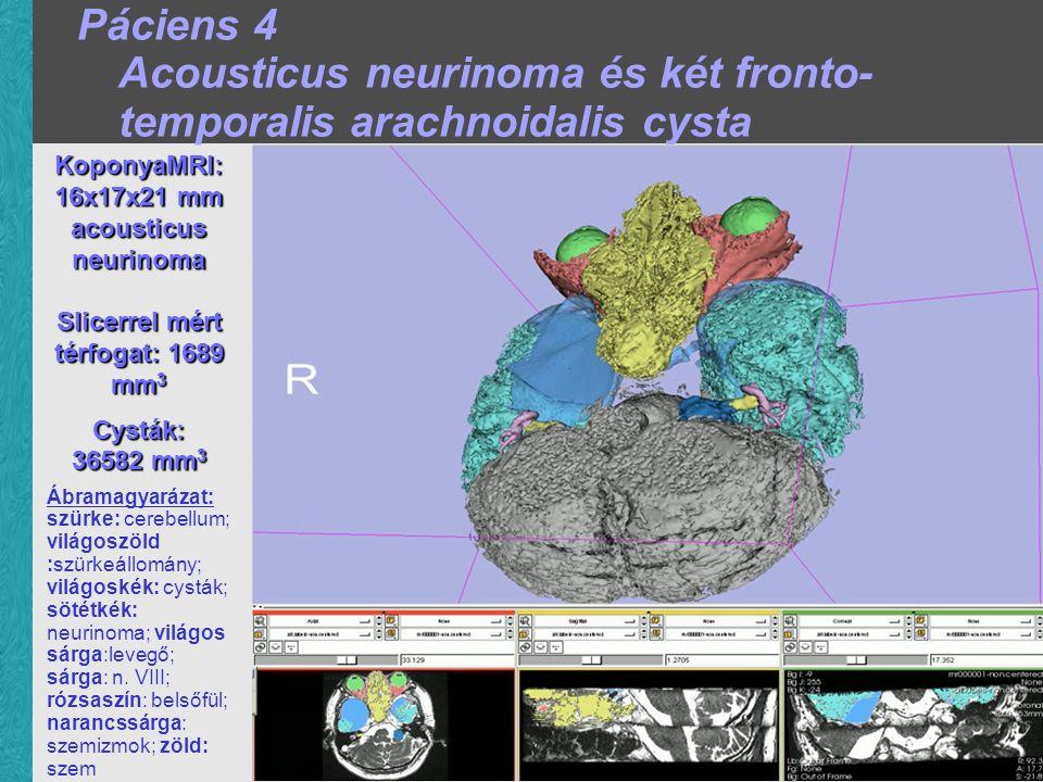 KoponyaMRI: 16x17x21 mm acousticus neurinoma Slicerrel mért térfogat:1689 mm 3 Slicerrel mért térfogat: 1689 mm 3 Cysták: 36582 mm 3 Ábramagyarázat: szürke: cerebellum; világoszöld :szürkeállomány; világoskék: cysták; sötétkék: neurinoma; világos sárga:levegő; sárga: n.