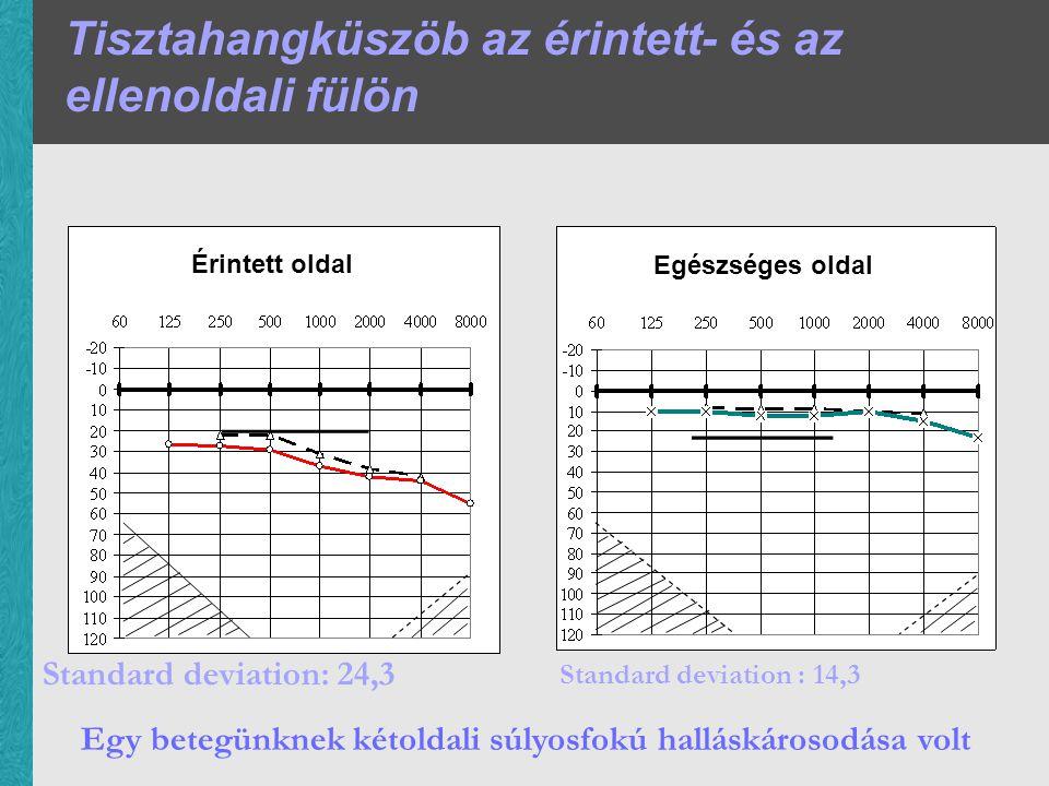 Tisztahangküszöb az érintett- és az ellenoldali fülön Egy betegünknek kétoldali súlyosfokú halláskárosodása volt Standard deviation: 24,3 Standard deviation : 14,3 Érintett oldal Egészséges oldal
