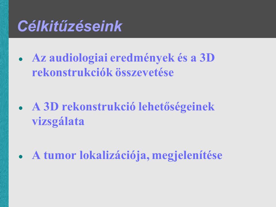 Célkitűzéseink Az audiologiai eredmények és a 3D rekonstrukciók összevetése A 3D rekonstrukció lehetőségeinek vizsgálata A tumor lokalizációja, megjel