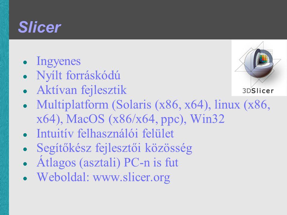 Ingyenes Nyílt forráskódú Aktívan fejlesztik Multiplatform (Solaris (x86, x64), linux (x86, x64), MacOS (x86/x64, ppc), Win32 Intuitív felhasználói felület Segítőkész fejlesztői közösség Átlagos (asztali) PC-n is fut Weboldal: www.slicer.org Slicer