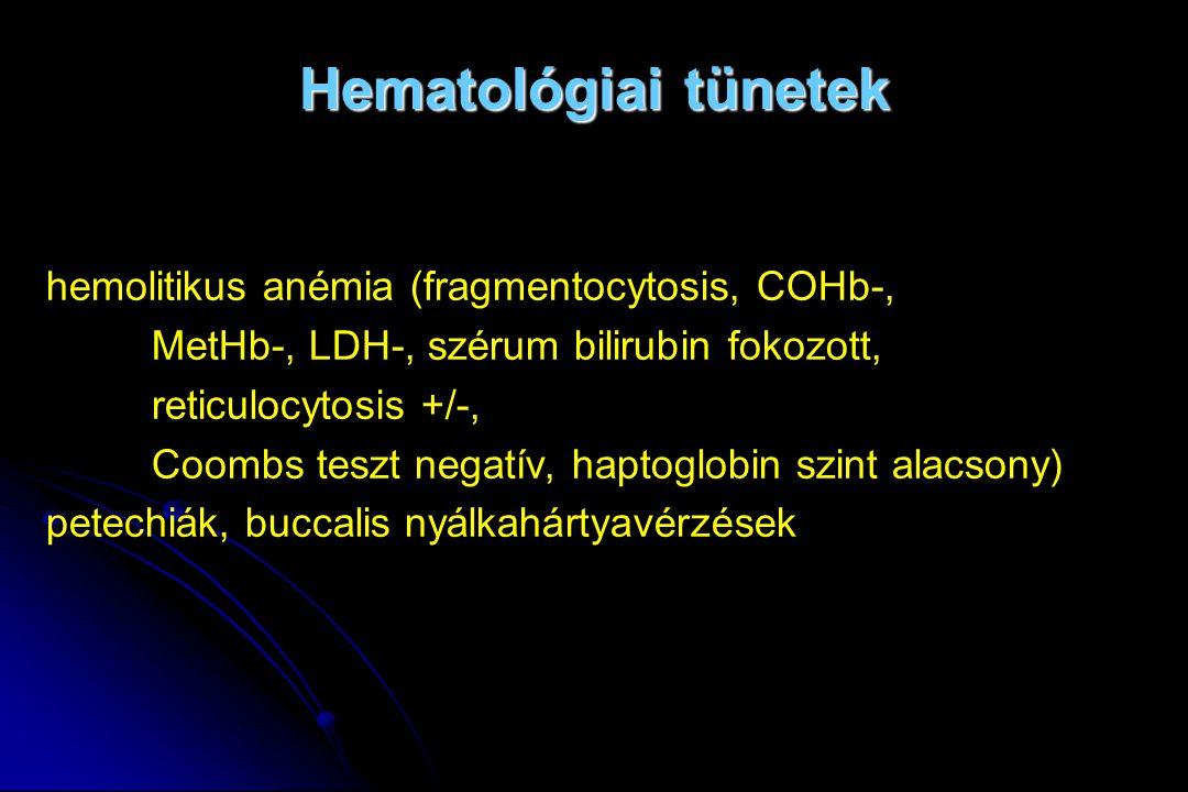Hematológiai tünetek hemolitikus anémia (fragmentocytosis, COHb-, MetHb-, LDH-, szérum bilirubin fokozott, reticulocytosis +/-, Coombs teszt negatív,