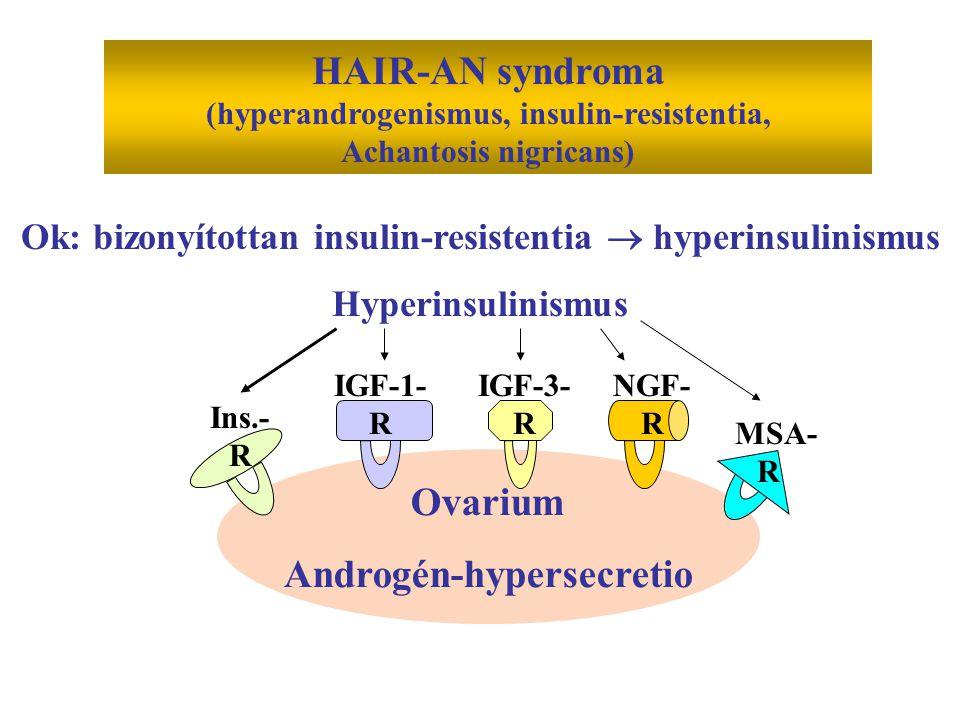 HAIR-AN syndroma (hyperandrogenismus, insulin-resistentia, Achantosis nigricans) Ok: bizonyítottan insulin-resistentia  hyperinsulinismus Hyperinsuli