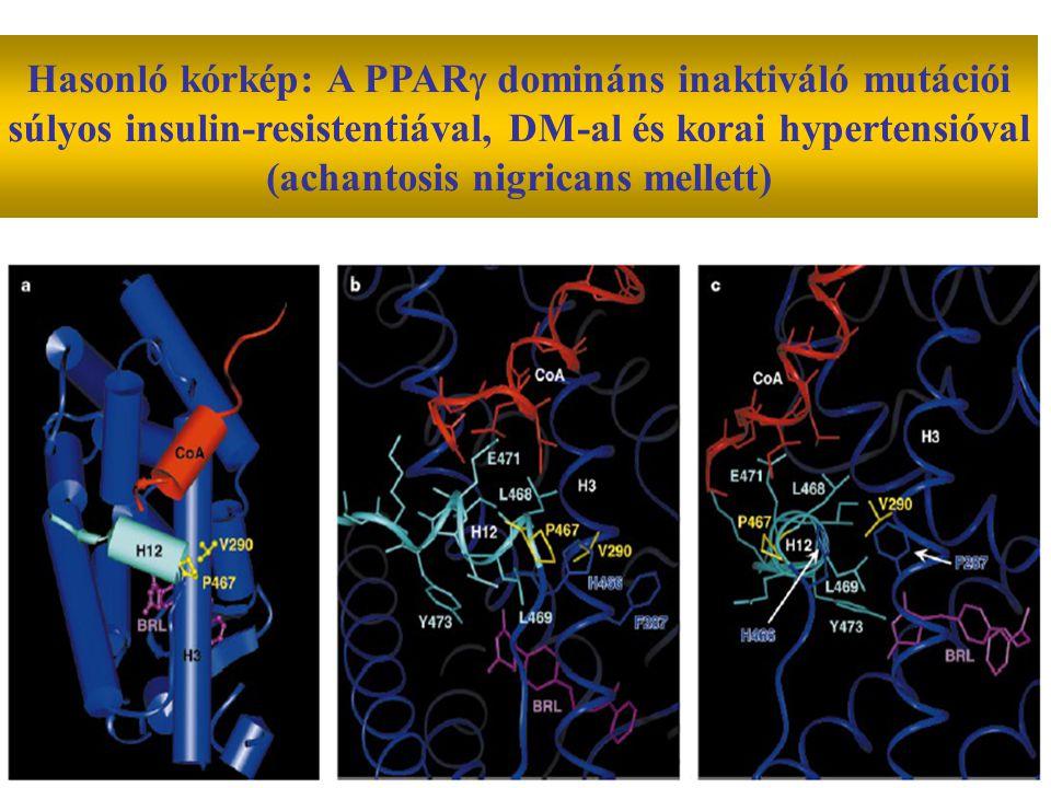 Hasonló kórkép: A PPAR  domináns inaktiváló mutációi súlyos insulin-resistentiával, DM-al és korai hypertensióval (achantosis nigricans mellett)