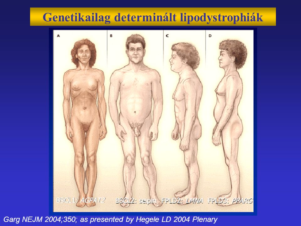 Genetikailag determinált lipodystrophiák Garg NEJM 2004;350; as presented by Hegele LD 2004 Plenary