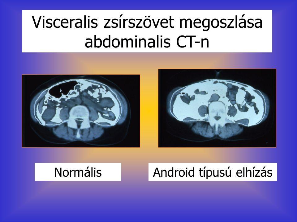NormálisAndroid típusú elhízás Visceralis zsírszövet megoszlása abdominalis CT-n