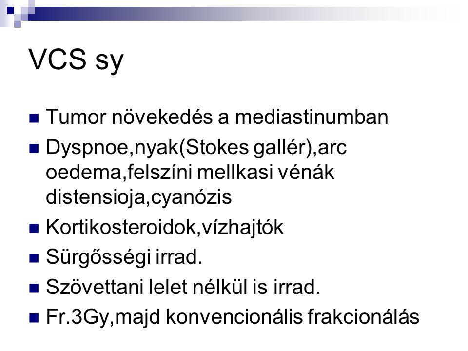 VCS sy Tumor növekedés a mediastinumban Dyspnoe,nyak(Stokes gallér),arc oedema,felszíni mellkasi vénák distensioja,cyanózis Kortikosteroidok,vízhajtók Sürgősségi irrad.