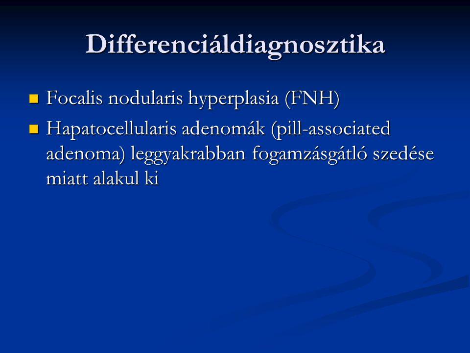 Differenciáldiagnosztika Focalis nodularis hyperplasia (FNH) Focalis nodularis hyperplasia (FNH) Hapatocellularis adenomák (pill-associated adenoma) leggyakrabban fogamzásgátló szedése miatt alakul ki Hapatocellularis adenomák (pill-associated adenoma) leggyakrabban fogamzásgátló szedése miatt alakul ki