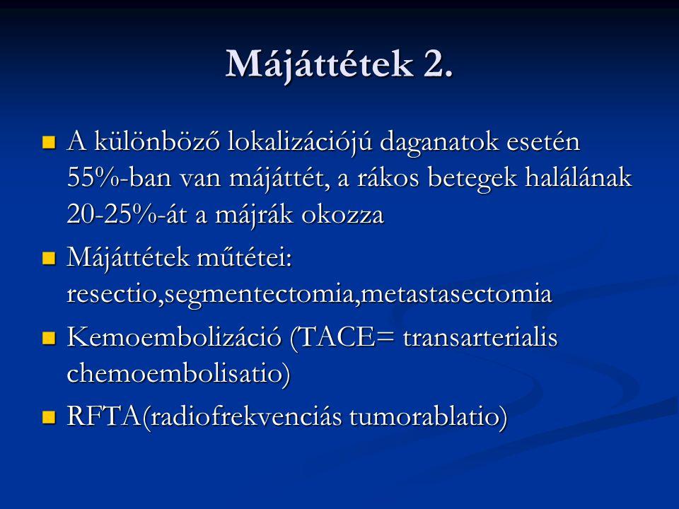 Májtumorok kezelése 1.