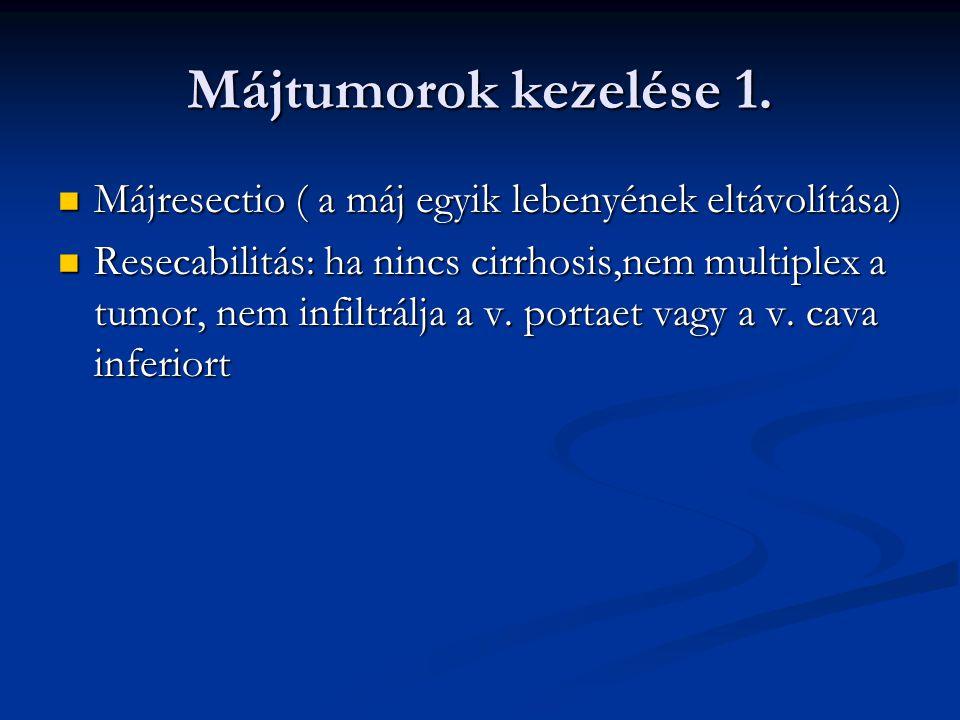Májtumorok kezelése 2.