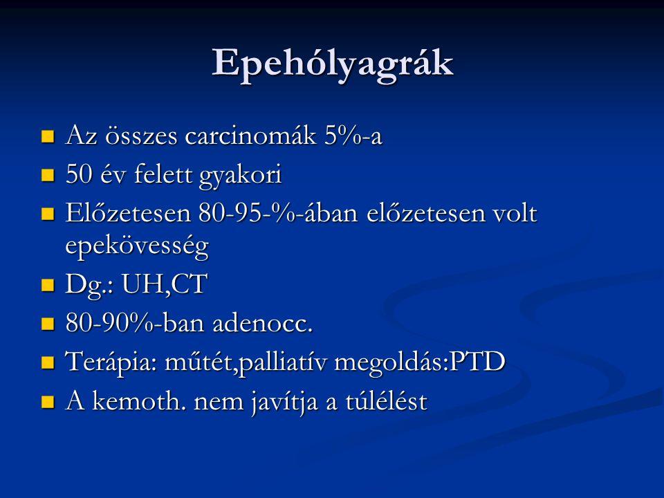 Epehólyagrák Az összes carcinomák 5%-a Az összes carcinomák 5%-a 50 év felett gyakori 50 év felett gyakori Előzetesen 80-95-%-ában előzetesen volt epekövesség Előzetesen 80-95-%-ában előzetesen volt epekövesség Dg.: UH,CT Dg.: UH,CT 80-90%-ban adenocc.