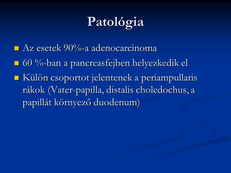 Patológia Az esetek 90%-a adenocarcinoma Az esetek 90%-a adenocarcinoma 60 %-ban a pancreasfejben helyezkedik el 60 %-ban a pancreasfejben helyezkedik el Külön csoportot jelentenek a periampullaris rákok (Vater-papilla, distalis choledochus, a papillát környező duodenum) Külön csoportot jelentenek a periampullaris rákok (Vater-papilla, distalis choledochus, a papillát környező duodenum)