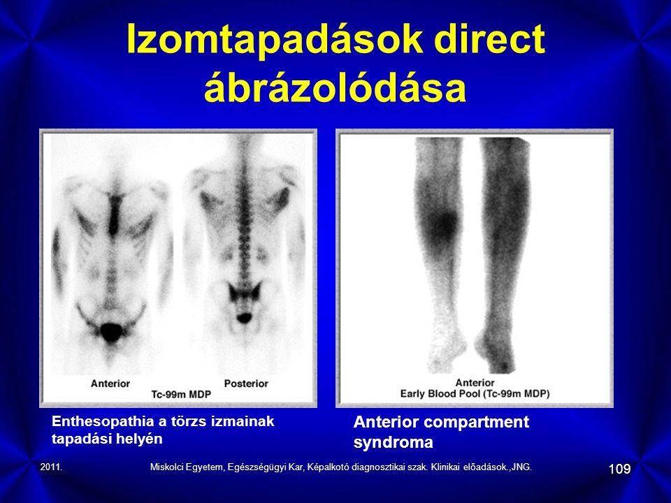 2011.Miskolci Egyetem, Egészségügyi Kar, Képalkotó diagnosztikai szak. Klinikai előadások.,JNG. 109 Izomtapadások direct ábrázolódása Enthesopathia a