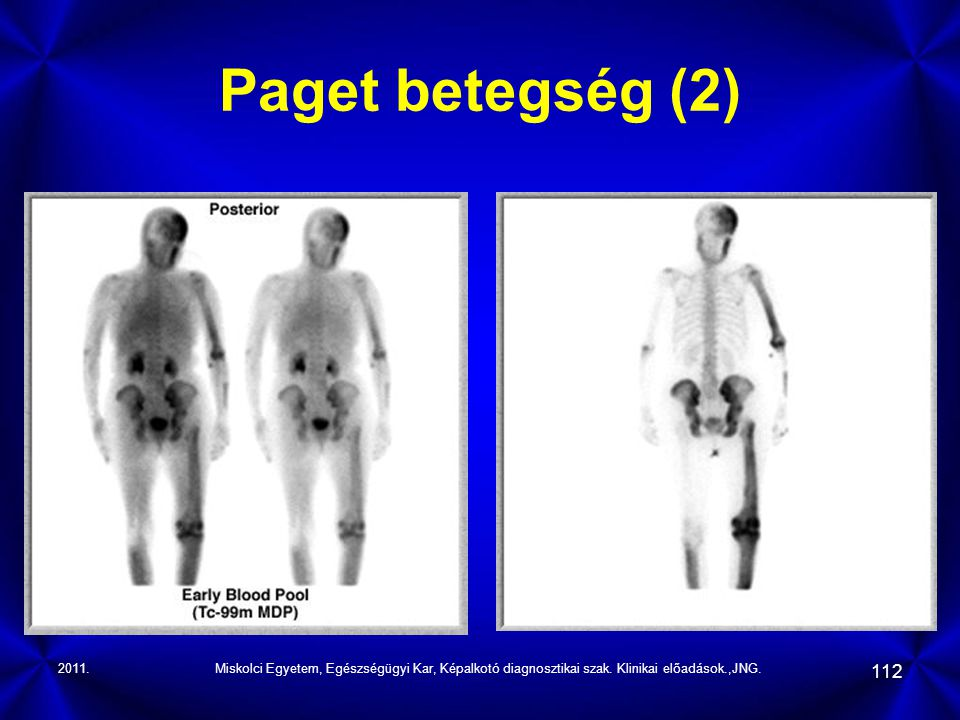 2011.Miskolci Egyetem, Egészségügyi Kar, Képalkotó diagnosztikai szak. Klinikai előadások.,JNG. 112 Paget betegség (2)
