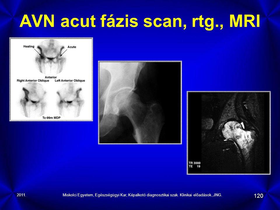 2011.Miskolci Egyetem, Egészségügyi Kar, Képalkotó diagnosztikai szak. Klinikai előadások.,JNG. 120 AVN acut fázis scan, rtg., MRI
