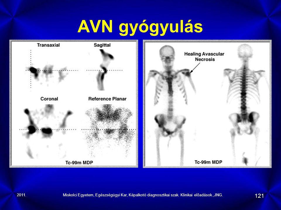 2011.Miskolci Egyetem, Egészségügyi Kar, Képalkotó diagnosztikai szak. Klinikai előadások.,JNG. 121 AVN gyógyulás